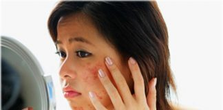 Acne Causes Types Home